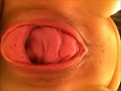 Pussy sewn Blonde's pussy